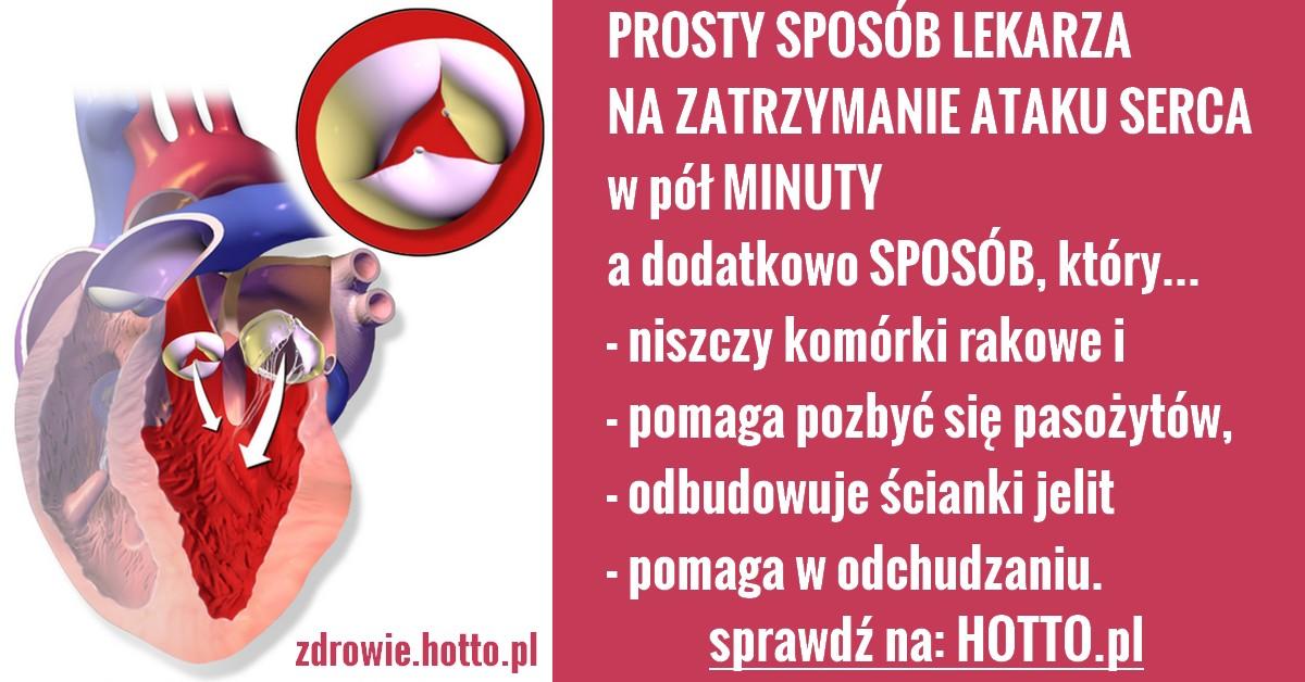 hotto.pl-jak szybko zatrzymać atak serca-radzi lekarz pogotowia